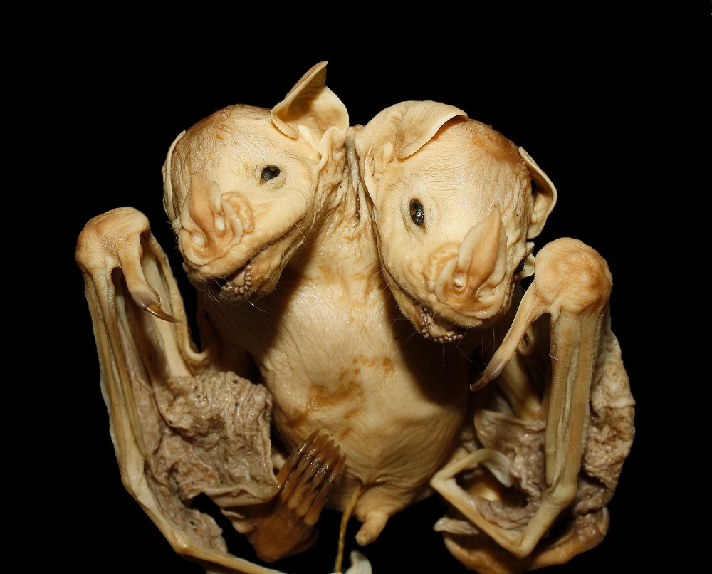Conjoined Bat Twins